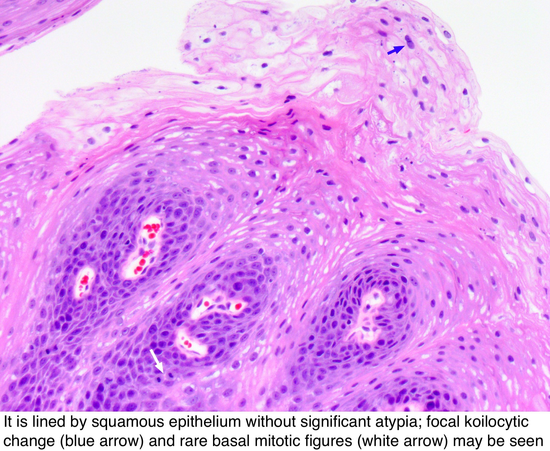 hpv esophagus pathology