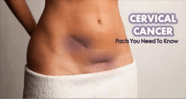 cervical cancer is it deadly