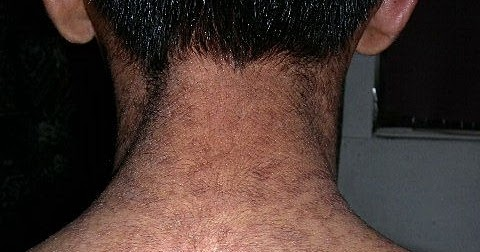 confluent and reticulated papillomatosis neck