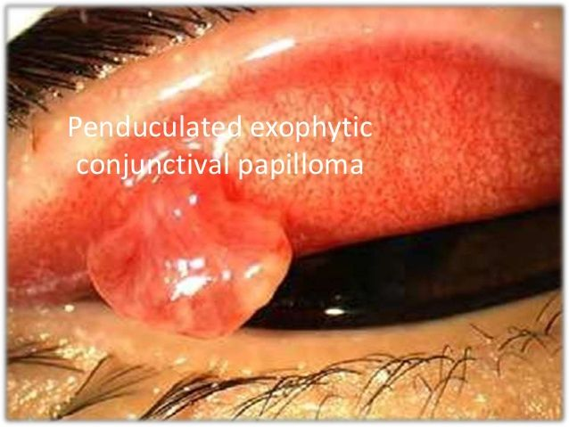conjunctival papilloma treatment