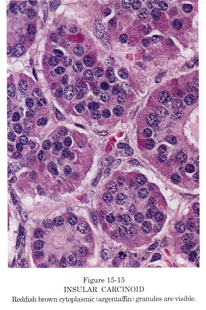 cancer bucal en perros hpv positive oropharyngeal cancer icd 10