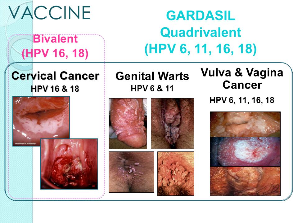 hpv cancer vs warts)