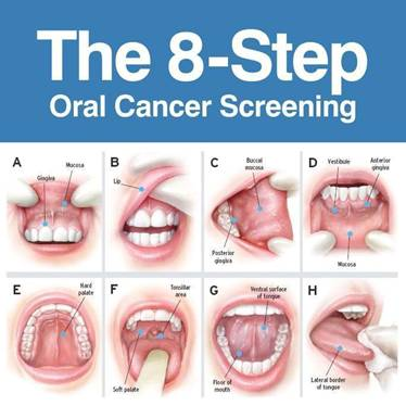 hpv oropharyngeal cancer screening