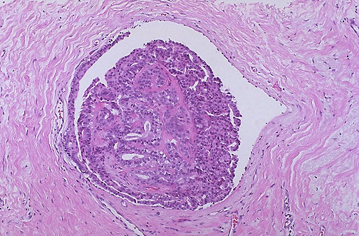 intraductal papilloma of pancreas)