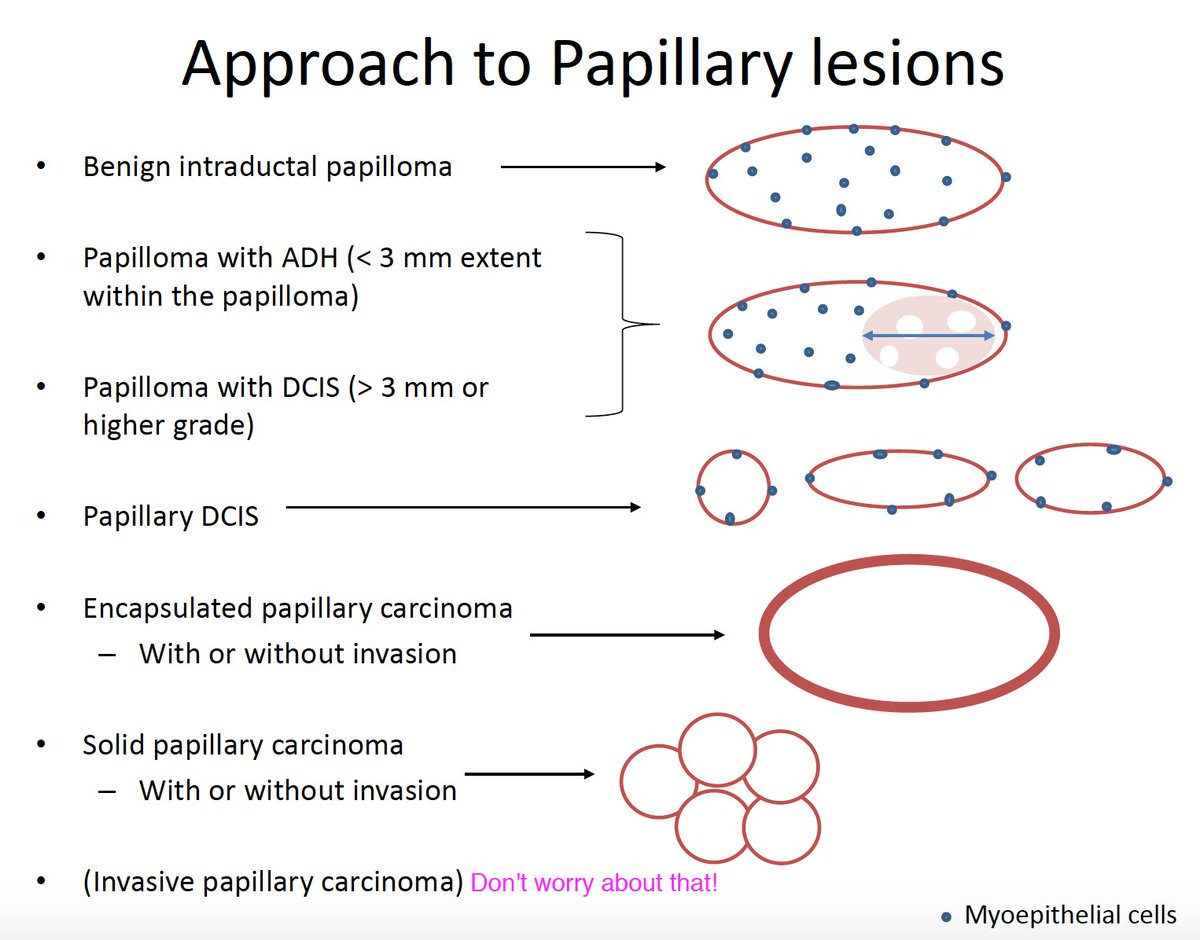 intraductal papilloma lesion