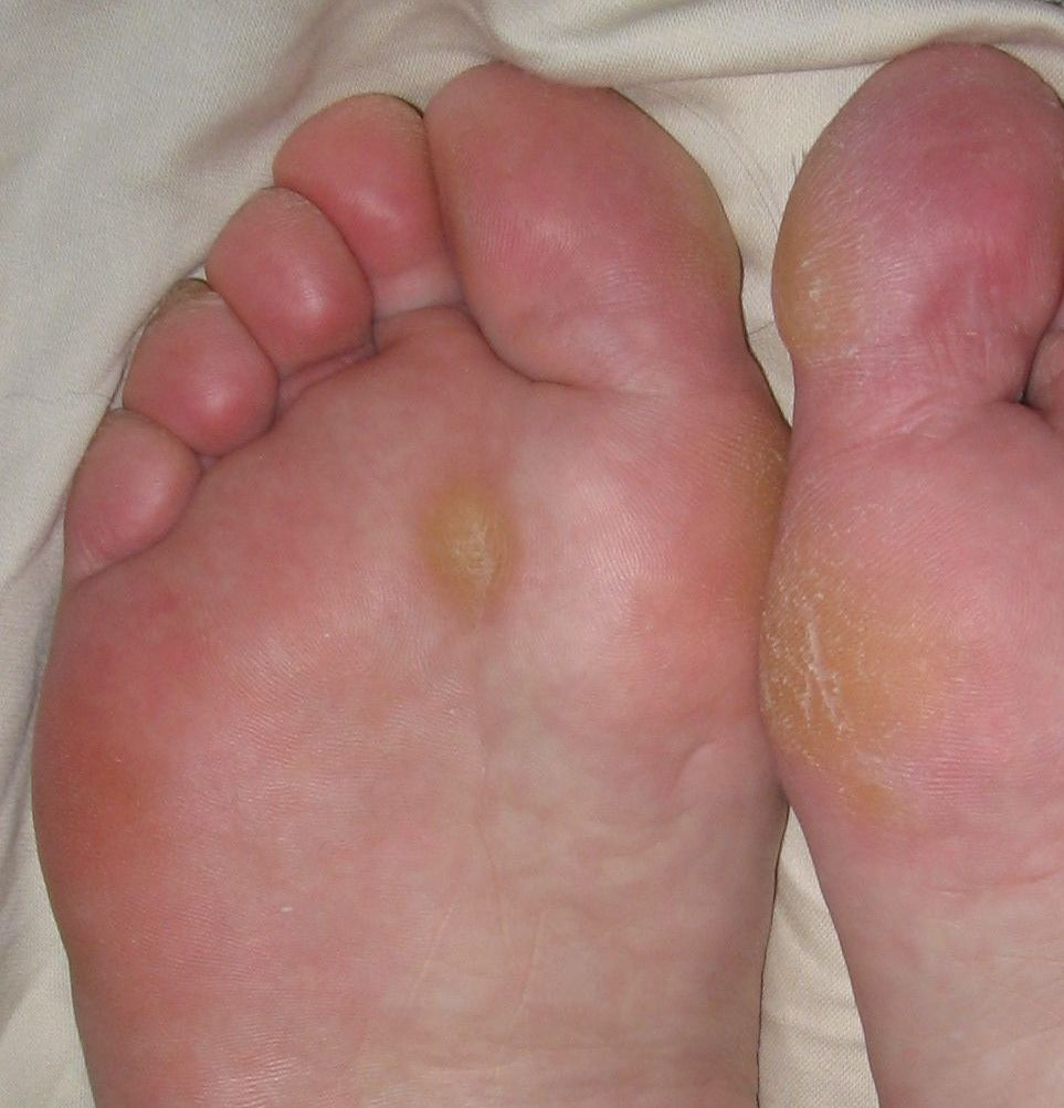 left foot wart icd 10
