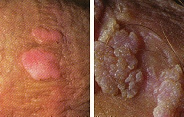 condylomata acuminata or genital warts are caused by papillomatosis confluent et reticularis
