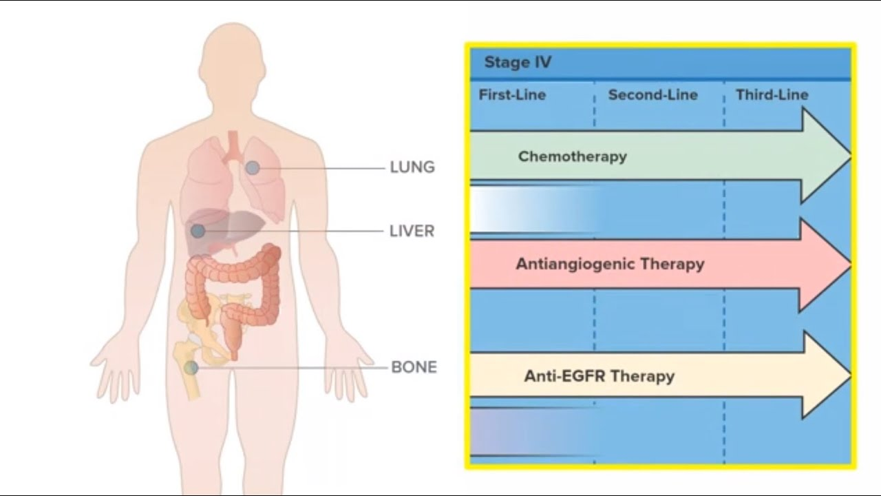 rectal cancer lung metastasis treatment
