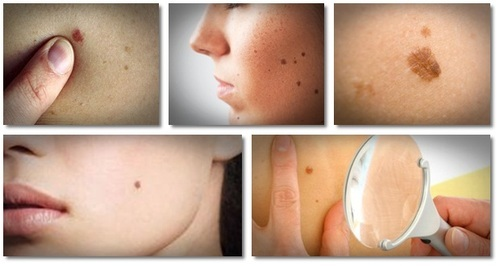warts removal treatment)