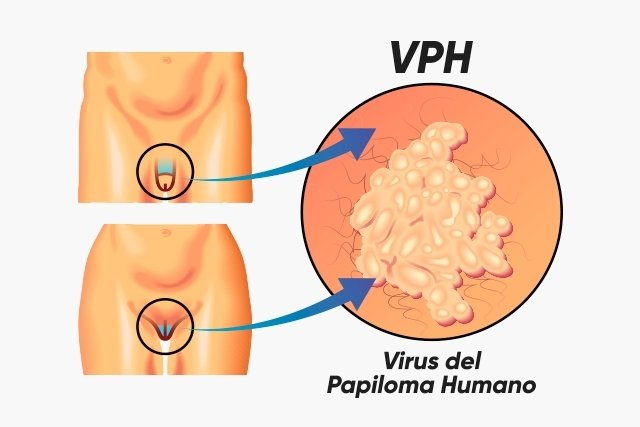 hpv and p16