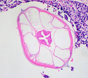 diagnosis b80 enterobiasis
