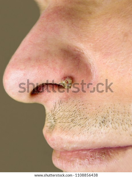 papilloma in the nose