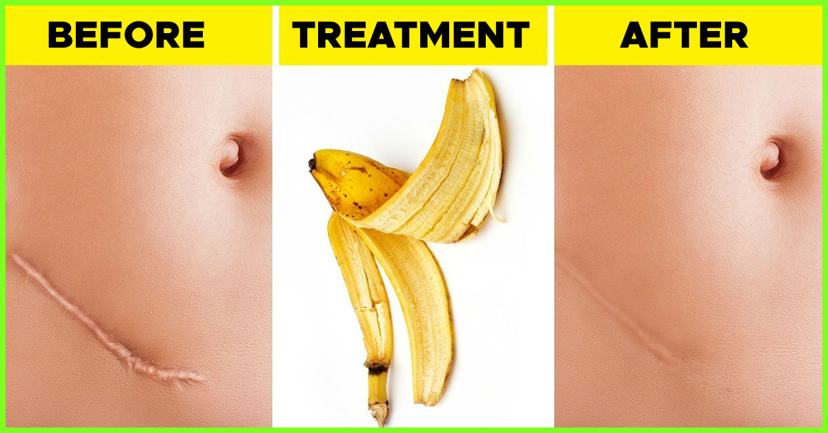 28 Best sanatate images   Homemade acne treatment, Health remedies, Herbalism