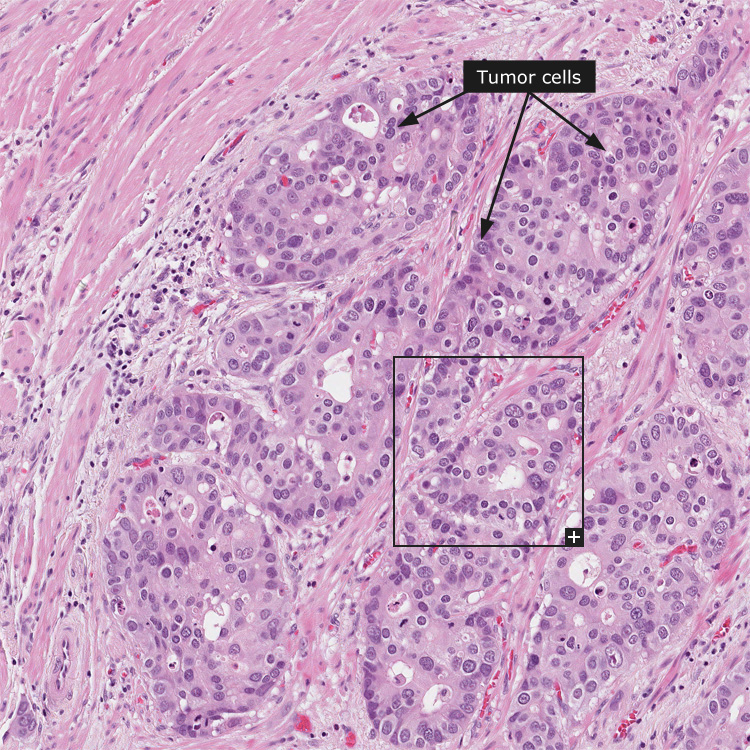 gastric cancer histology)