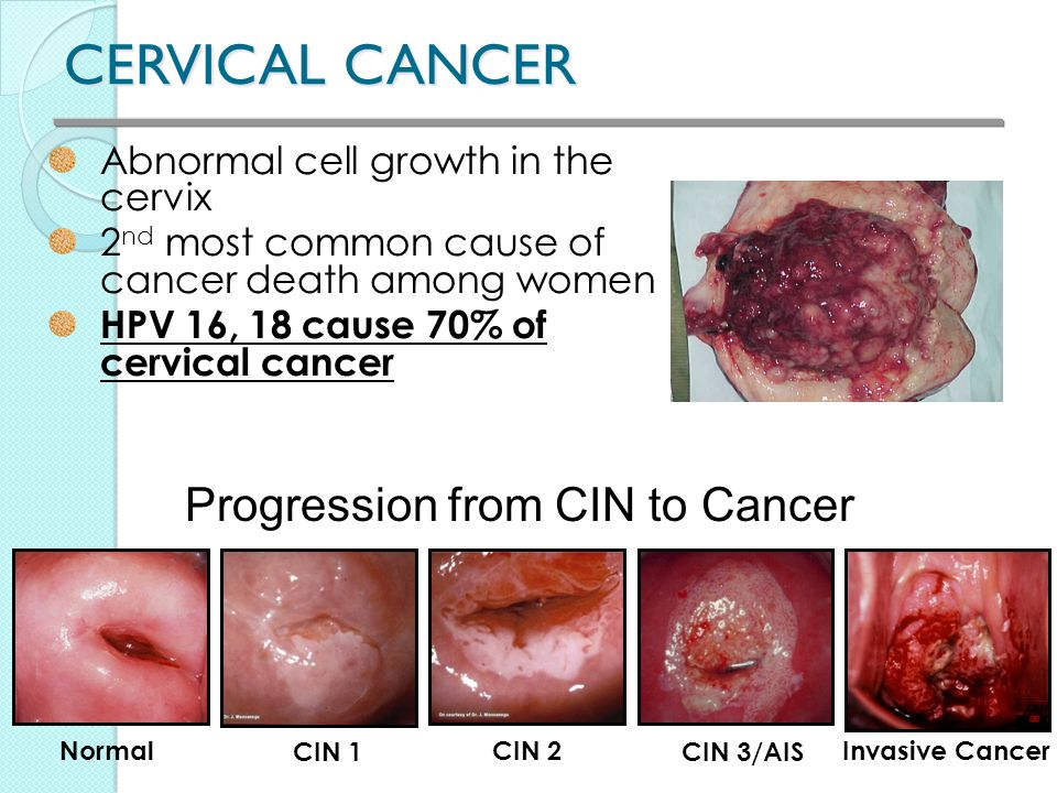 cancer from hpv in females)