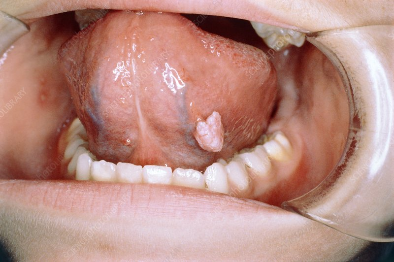 removing papilloma from tongue)