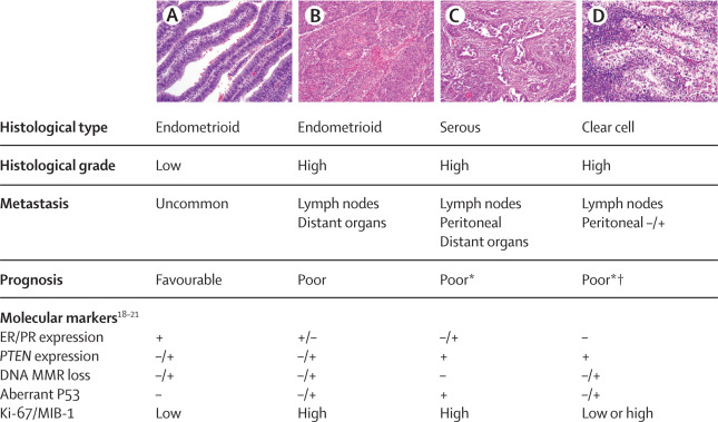 Clinical , histopathological and immunohistochemical study of endometrial carcinomas