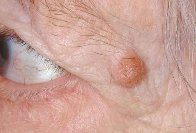 eye papilloma causes)