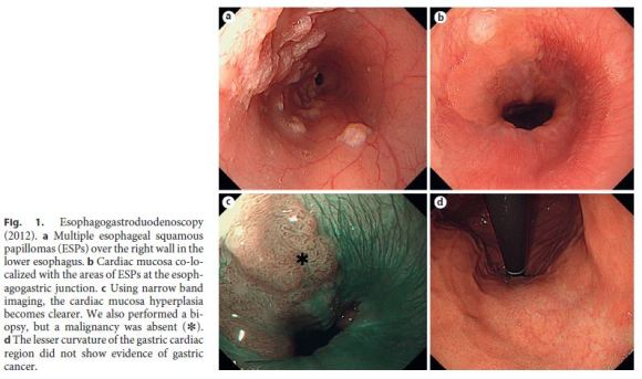 squamous papilloma ge junction)