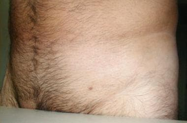 hpv and genital wart)