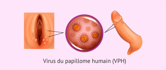 hpv cure foods