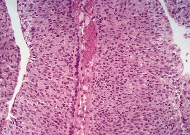 papillary urothelial neoplasm of low malignant potential pathology outlines