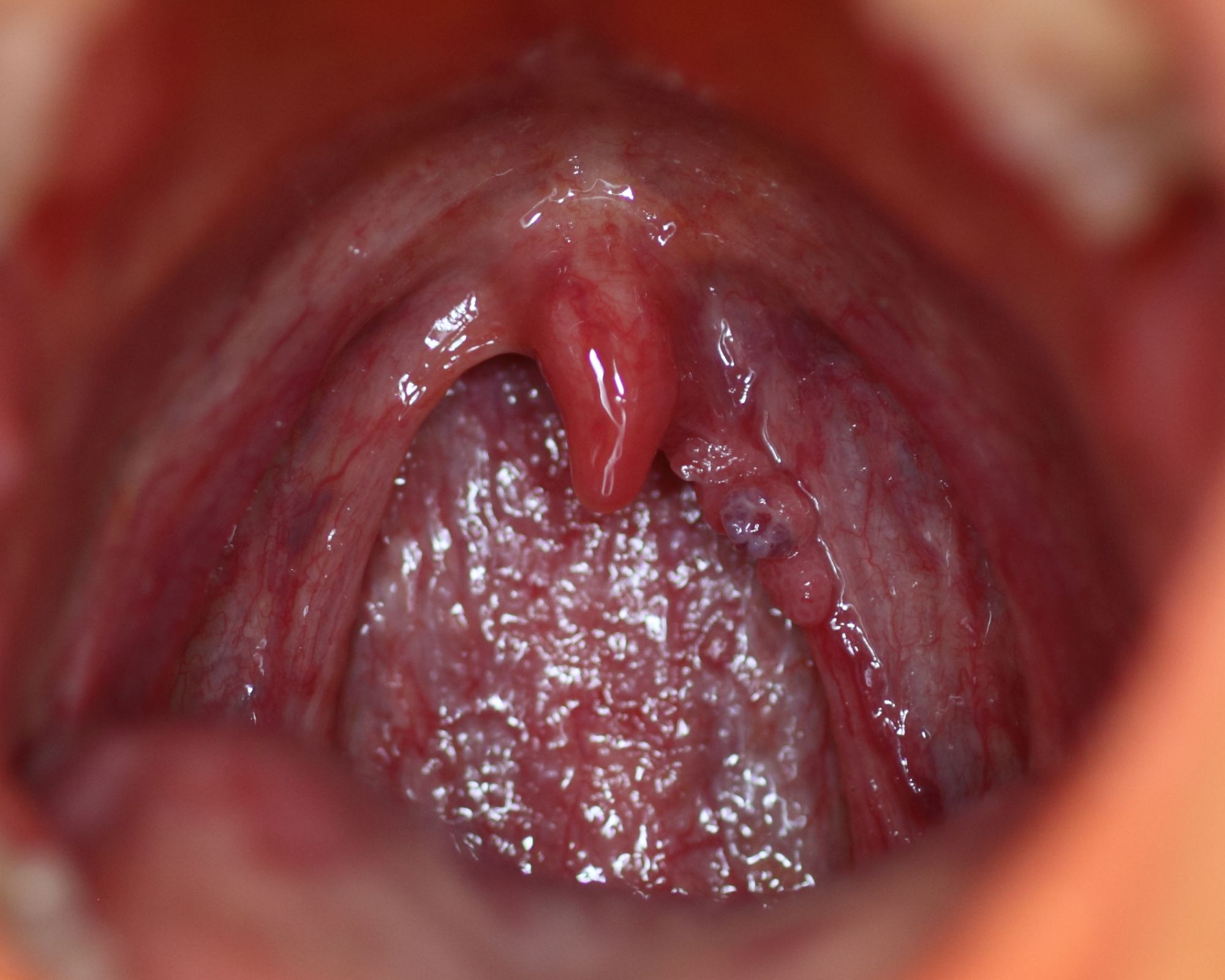throat papilloma removal)