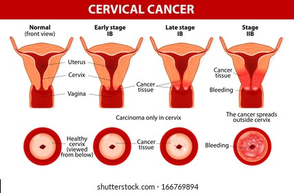 uterine cancer in cervix pancreatic cancer questions to ask your doctor