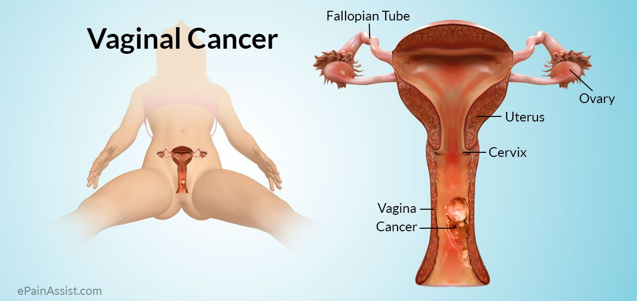 uterine cancer watery discharge