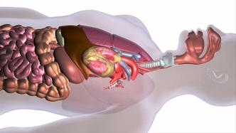 esophageal cancer caused by hpv)