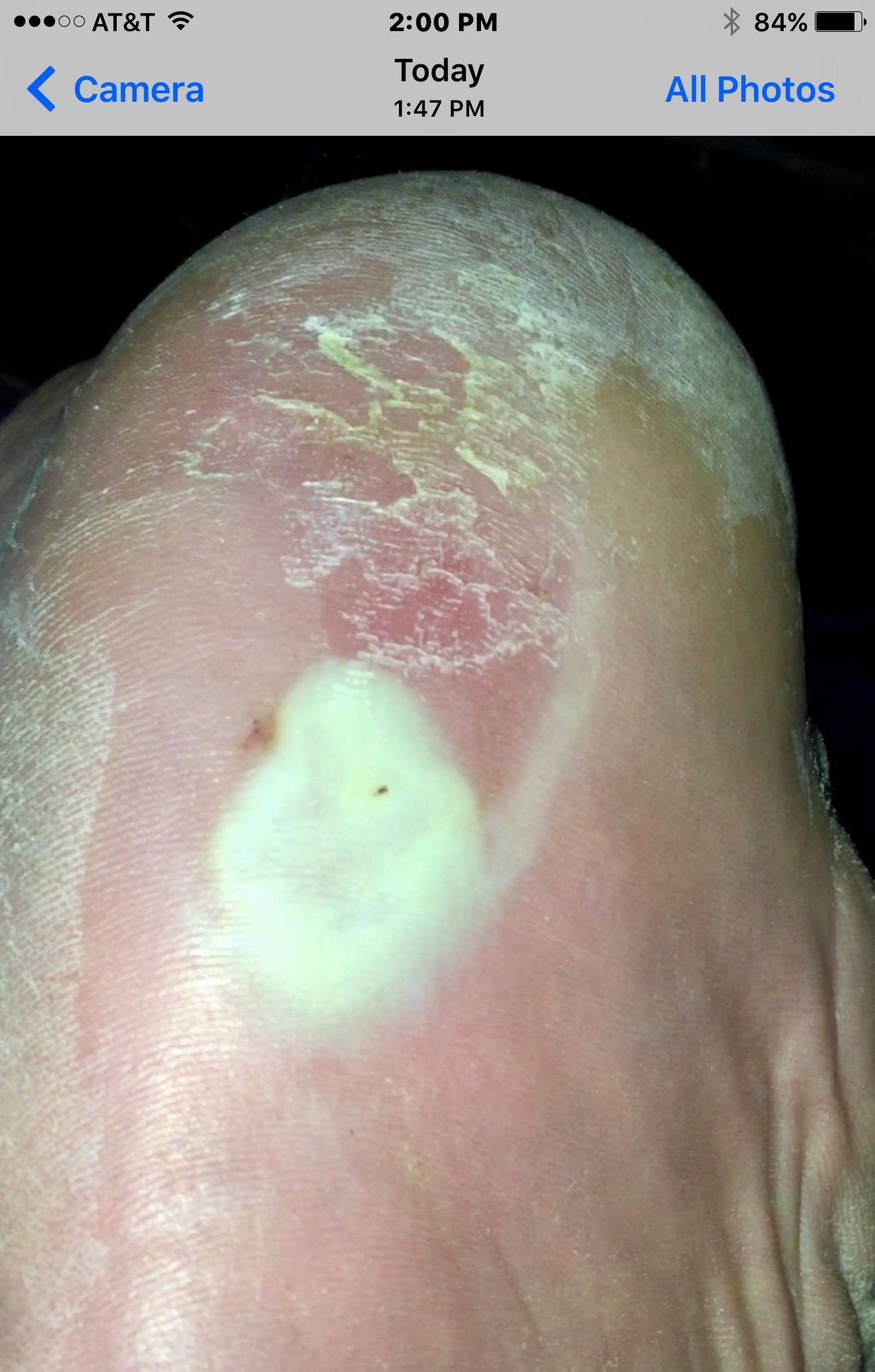 foot wart blister)