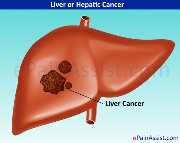hepatic cancer drugs