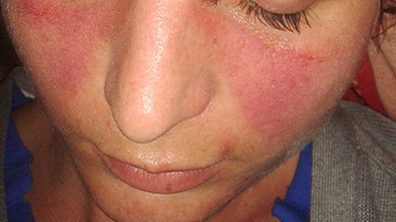 hpv and face rash