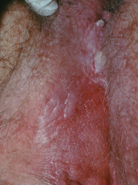 15 Best ichtioza images | Lamellar ichthyosis, Dry scaly skin, Homeopathy medicine