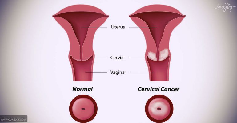 hpv cancer early symptoms)