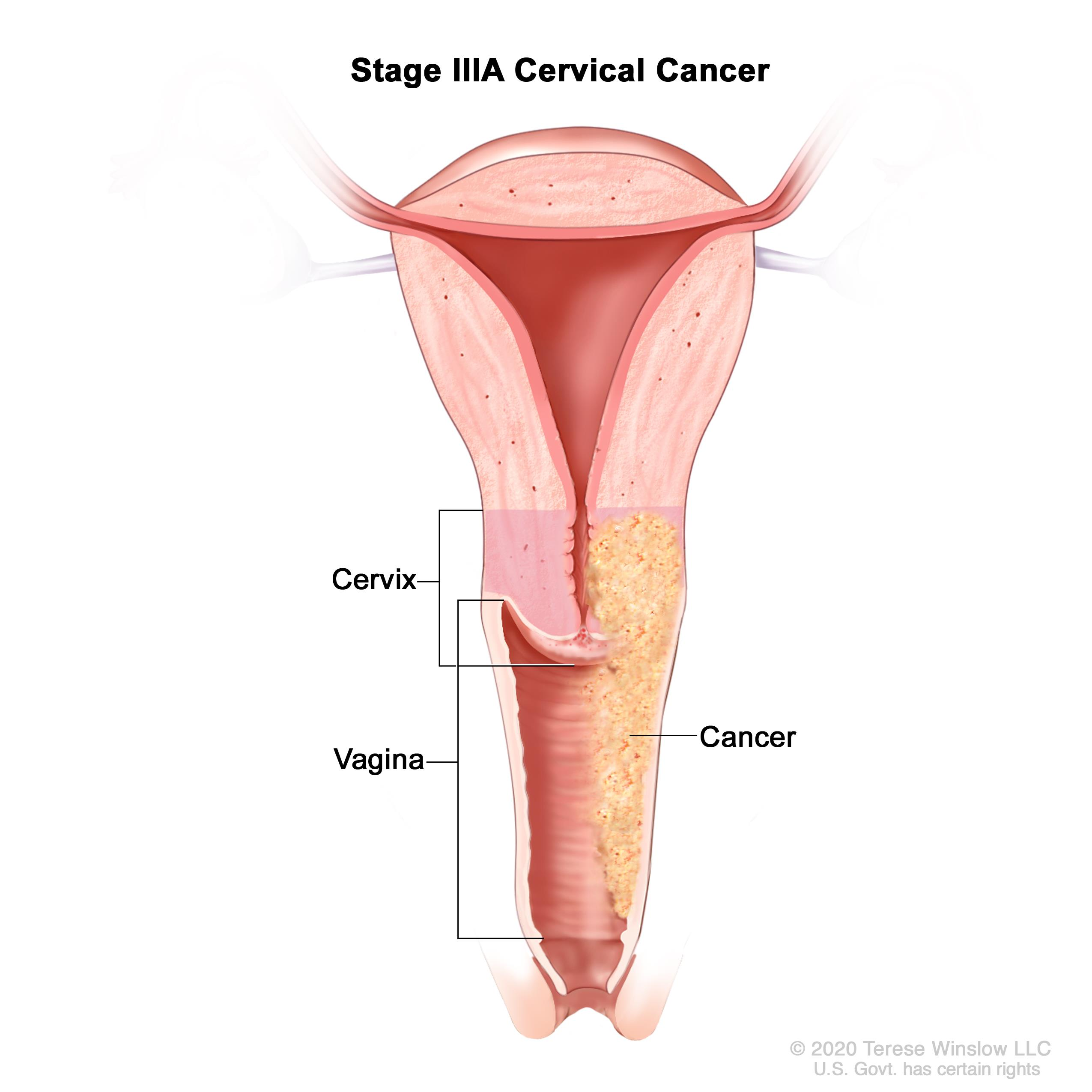 hpv e cancer de prostata