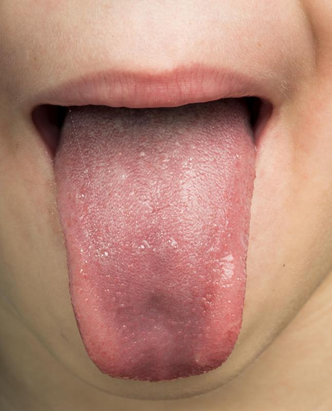 hpv in mouth painful