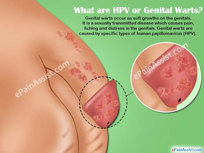 hpv male genital warts treatment)