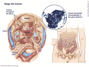 uterine cancer killed anemia 0 7