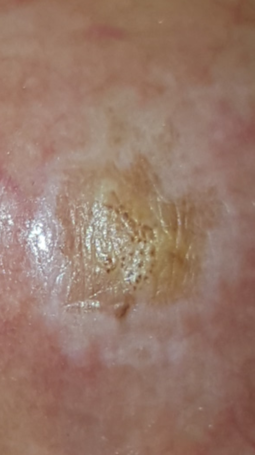hpv warts turned black