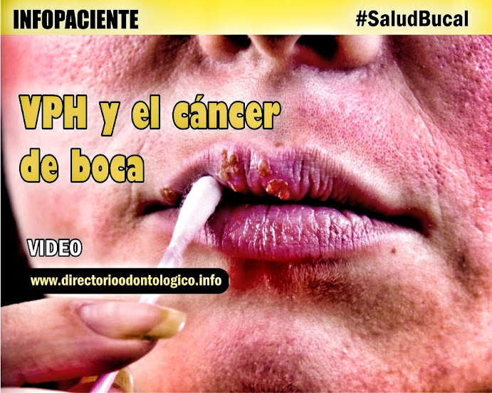hpv y cancer bucal)