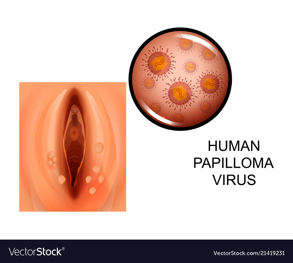 human papilloma pictures