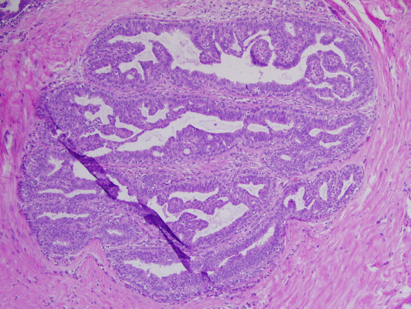 intraductal papilloma of pancreas