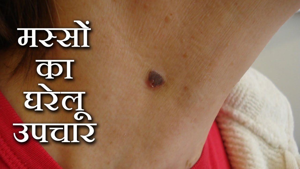 meaning of papilloma in hindi