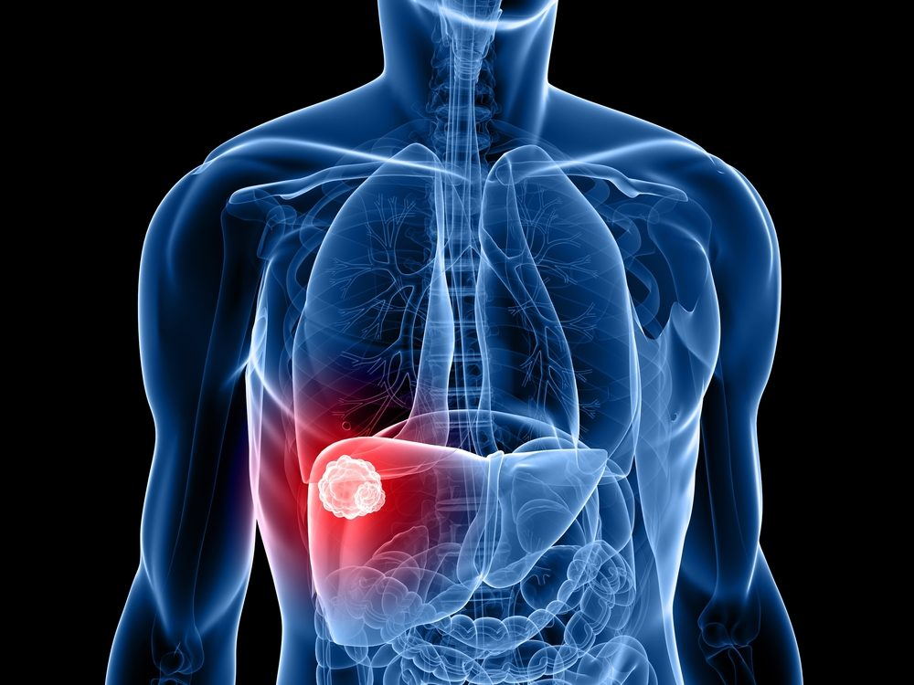 metastatic cancer how long to live)