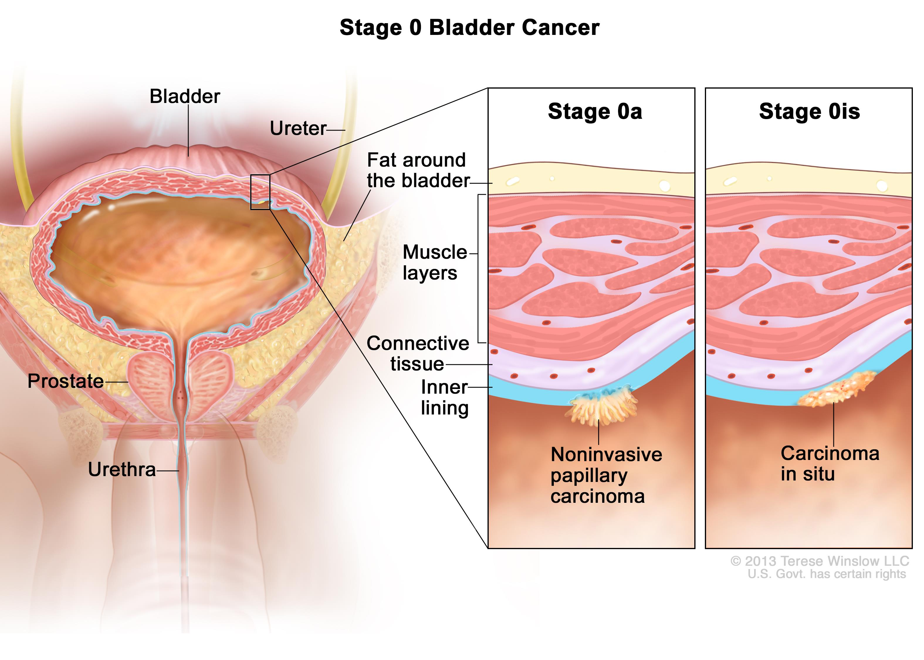 metastatic cancer of the bladder)