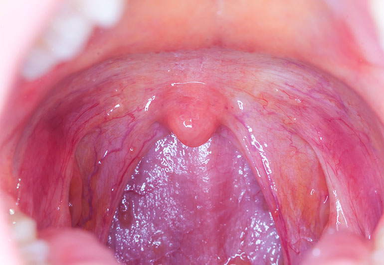 new staging for hpv throat cancer