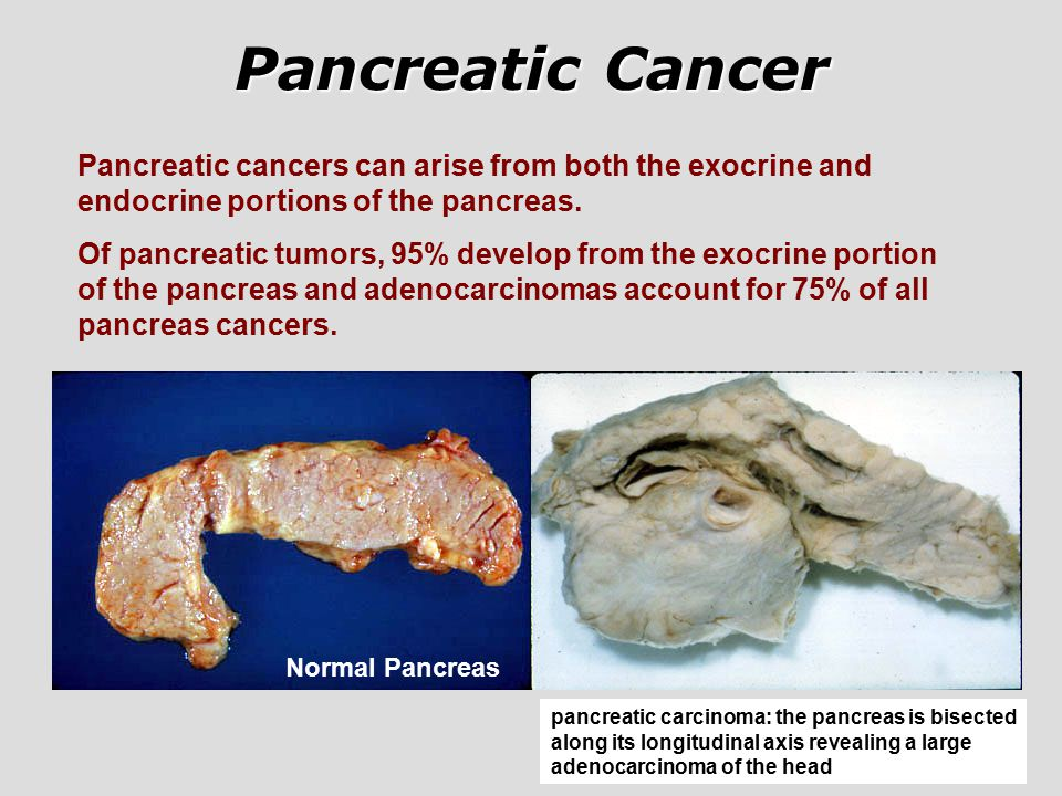 pancreatic cancer adenocarcinoma)