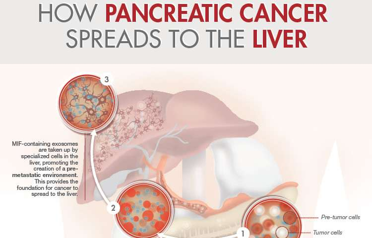 pancreatic cancer with liver metastases