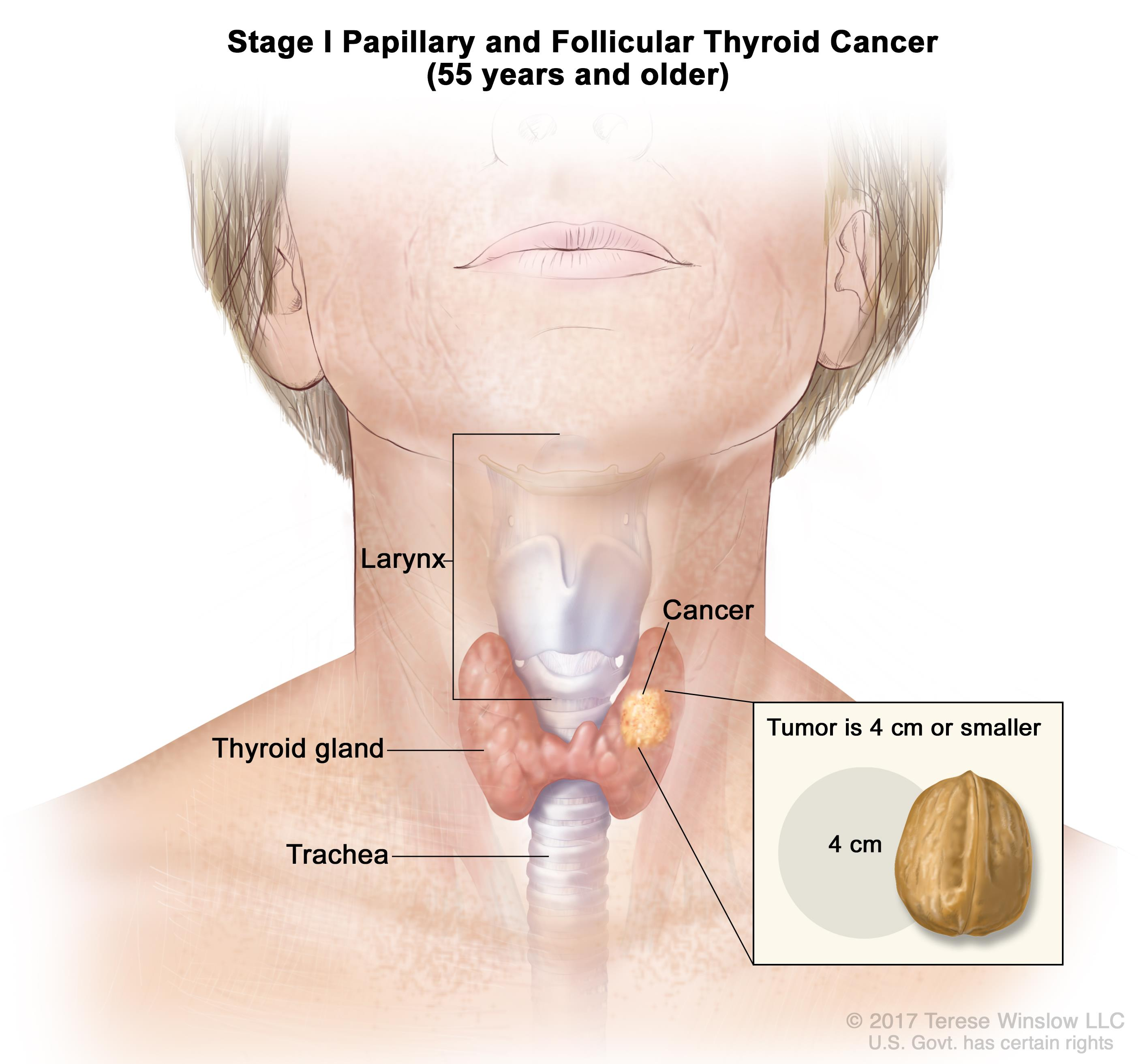 papillary thyroid cancer chemotherapy)